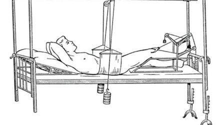 Травмы таза — симптомы, первая помощь, лечение, код по МКБ