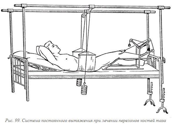 что делать при травмах таза - лечение
