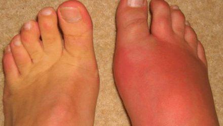 Рожистое воспаление ноги — причины, симптомы, диагностика и лечение