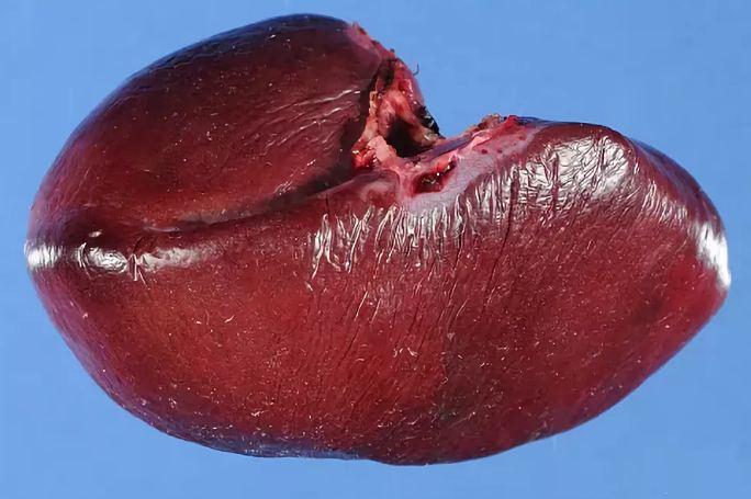 Селезенка болит лечение