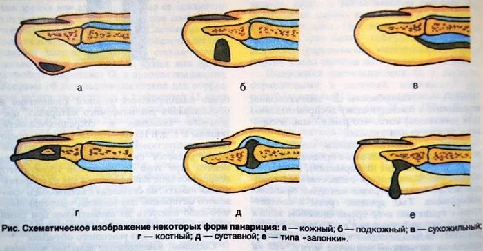 формы панариция