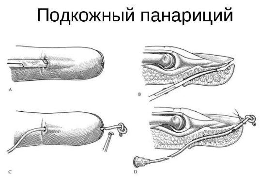 хирургическое лечение панариция