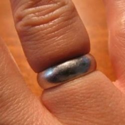 Как снять кольцо с опухшего пальца самостоятельно дома, причины отека