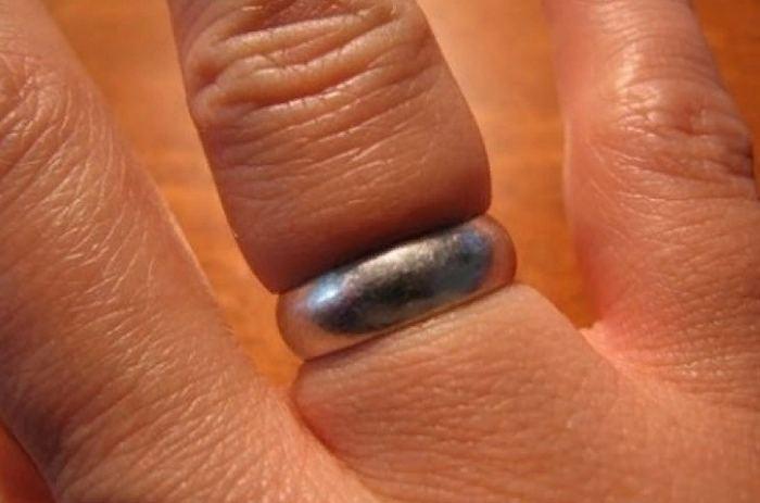 как снять обручальное кольцо с опухшего пальца руки