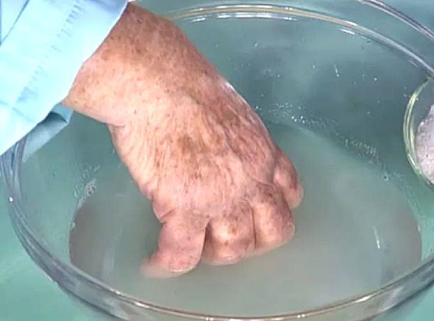 Воспаление мягких тканей пальца руки