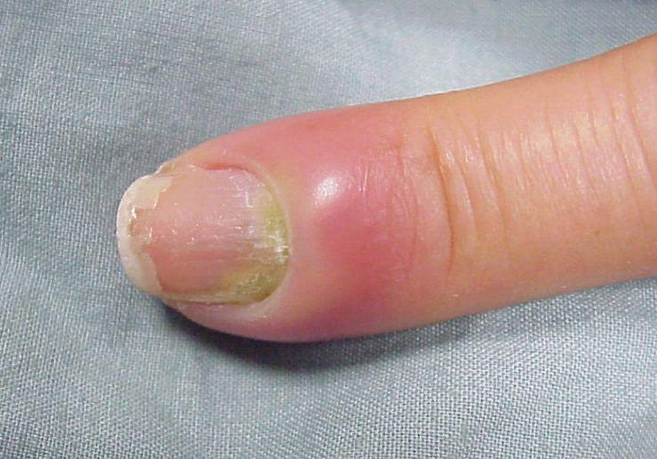 Подкожный панариций пальца на руке
