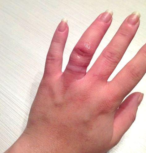 след после снятия кольца с пальца