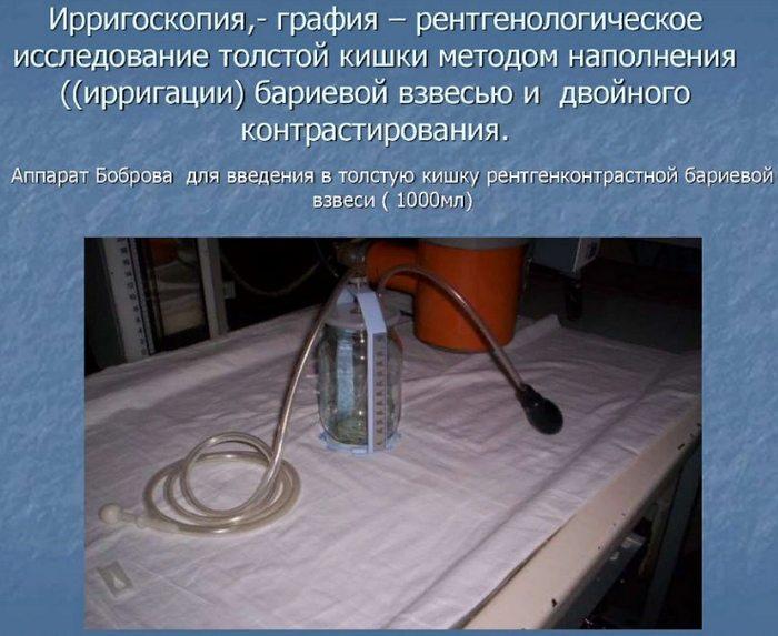 аппарат Боброва для введения бария при ирригоскопии