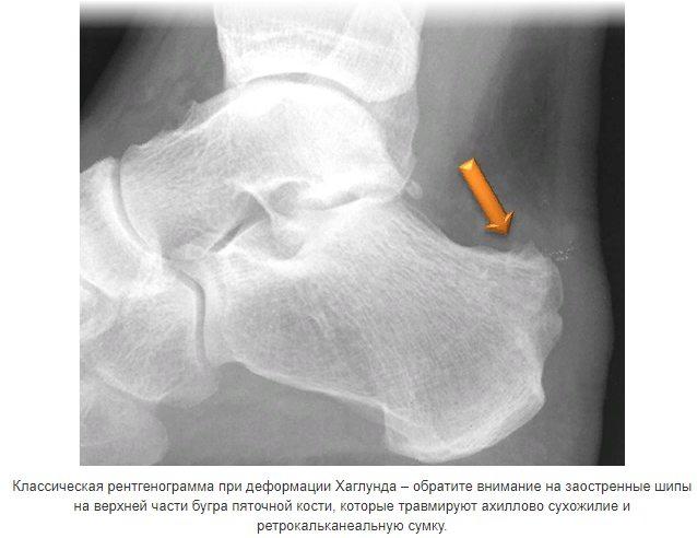 что покажет рентген при болезни Хаглунда