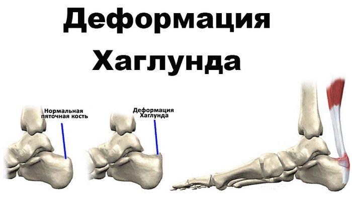 диагностика деформации Хаглунда