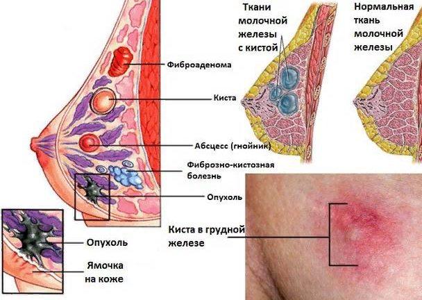 диагностика кисты и других образований молочных желез