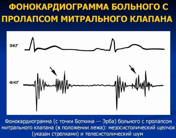 диагностика пролапса - ЭКГ и ФКГ