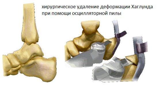 хирургическое лечение деформации Хаглунда