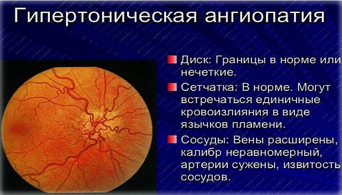 как выглядит ангиопатия сетчатки глаза