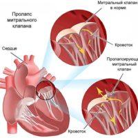 Пролапс митрального клапана — степени, причины, симптомы, лечение ПМК