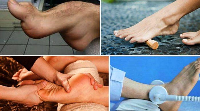 лечение полой стопы