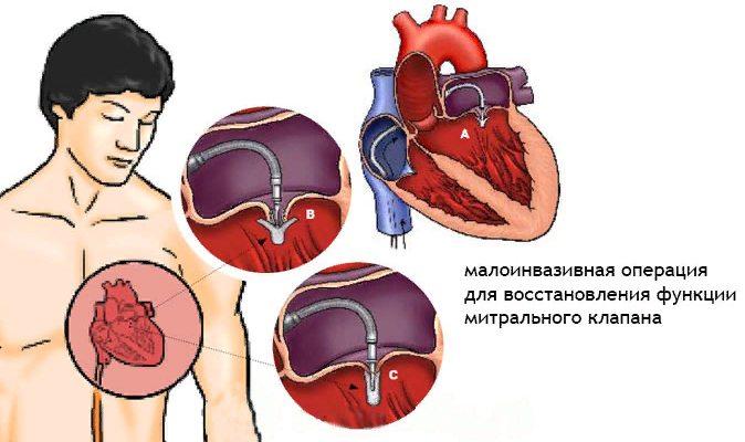 лечение пролапса митрального клапана сердца