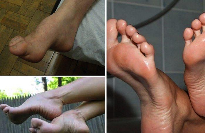 симптомы полой стопы