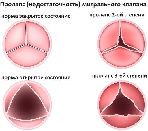 степени пролапса митрального клапана