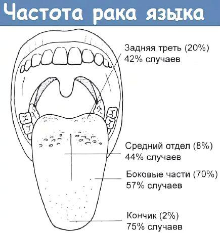 часто рака языка