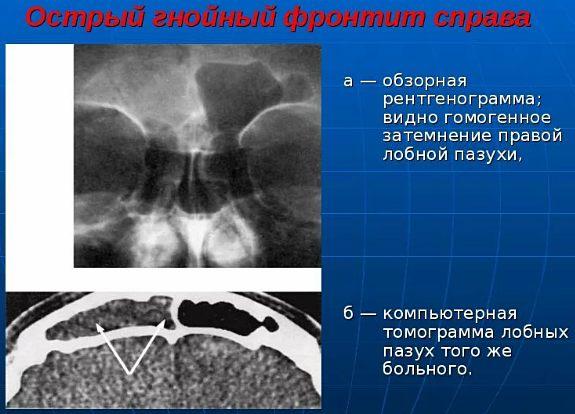 диагностика гнойного фронтита
