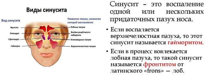 фронтит - вид синусита