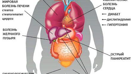 Инсулиновая резистентность — что это, симптомы, причины, лечение, диета