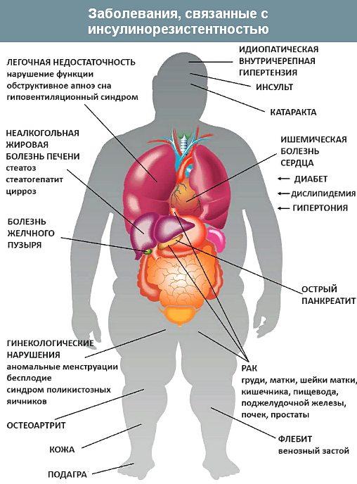 последствия инсулинорезистентности для организма