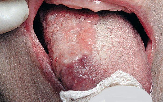 рак языка - фото симптомов, как выглядит