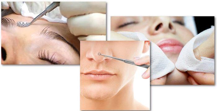 косметическая чистка лица от комедонов