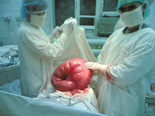 оперативное лечение при непроходимости кишечника