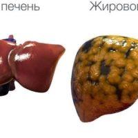 Жировой гепатоз печени — причины, стадии, симптомы и лечение