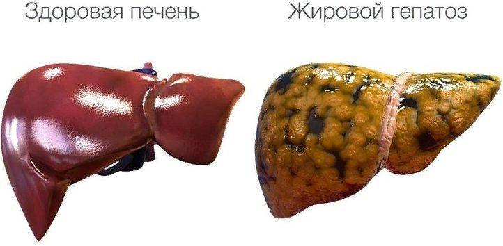 как выглядит ожирение печени - жировой гепатоз