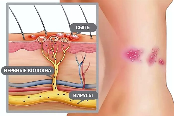 механизм действия попадания вируса герпеса