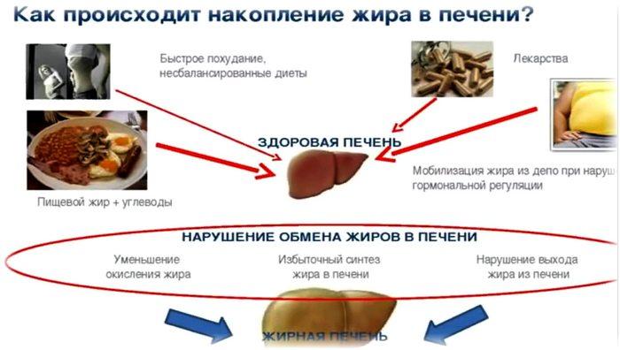причины возникновения жирового гепатоза печени