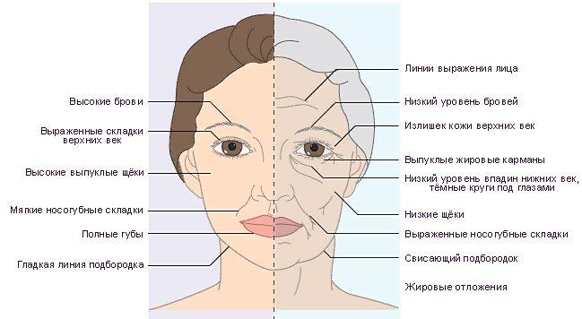 признаки старения на лице