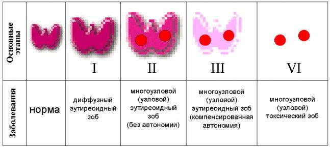 формы зоба