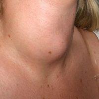 Узловой зоб щитовидной железы — степени, симптомы и лечение