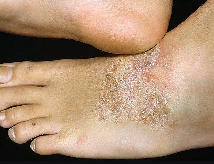признаки нейродермита на ноге
