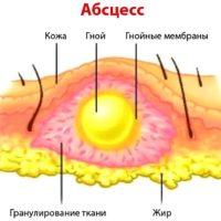 Абсцесс после укола в ягодицу, лечение постинъекционного инфильтрата