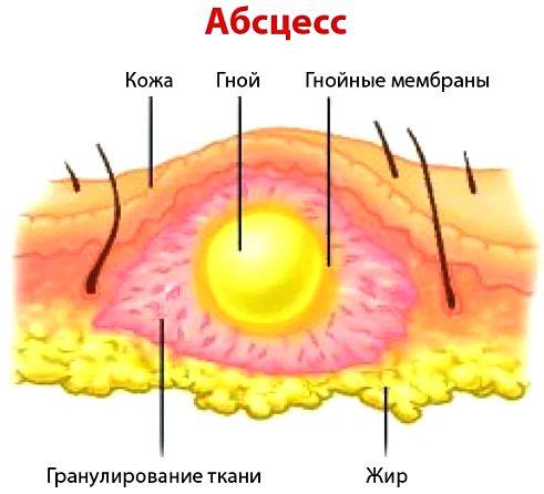 абсцесс в ягодице после укола