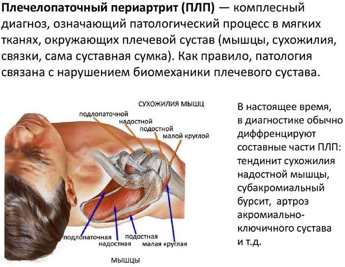 что такое плечелопаточный периартрит