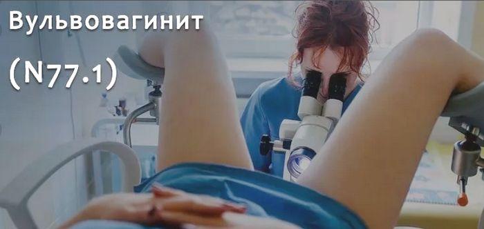 диагностика вульвовагинита у женщин