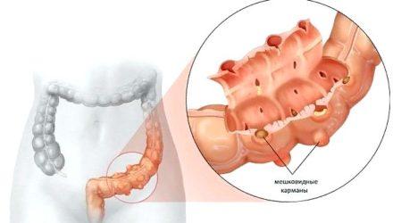 Дивертикулез кишечника — причины, симптомы и лечение у взрослых, питание