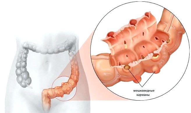 Дивертикулез кишечника симптомы и лечение у взрозлых