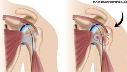 Плечелопаточный периартрит — причины,симптомы и лечение, комплекс упражнений Попова
