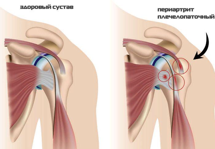 изменения при плечелопаточном периартрите