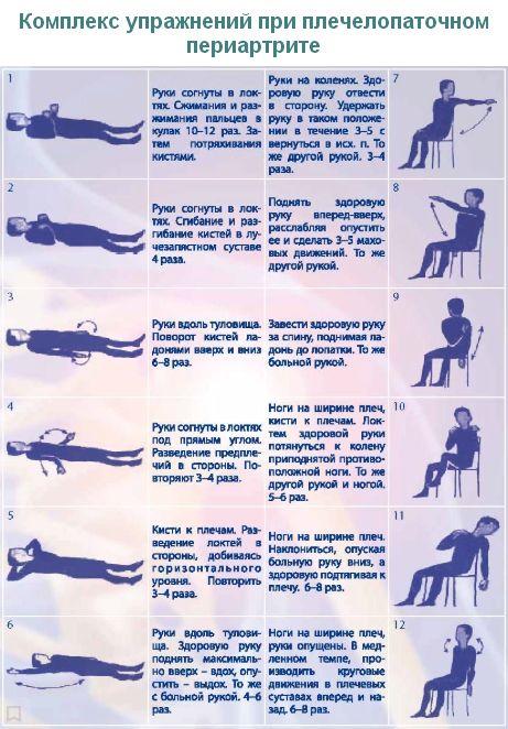 комплекс упражнений ЛФК при плечелопаточном периартрите