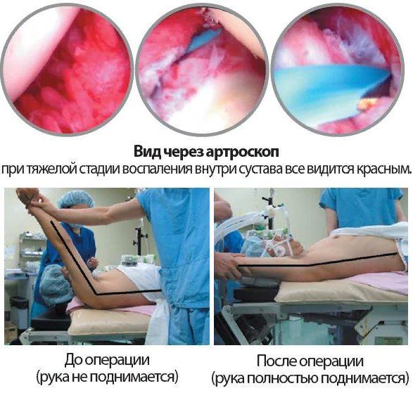 оперативное вмешательство при плечелопаточном периартрите