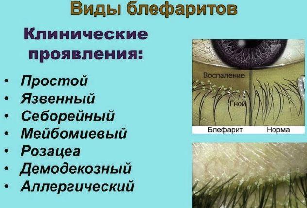 виды блефаритов